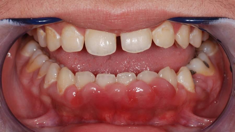 Что такое флюс, почему возникает и как лечить флюс зуба