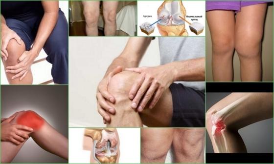 Артроз коленного сустава 2 степени: лечение, симптомы, что это такое, причины