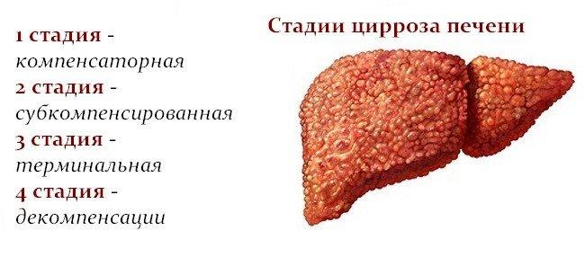 Цирроз печени — википедия с видео // wiki 2