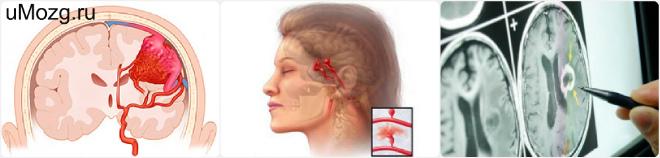 Причины возникновения, симптомы, лечение и последствия аневризмы головного мозга