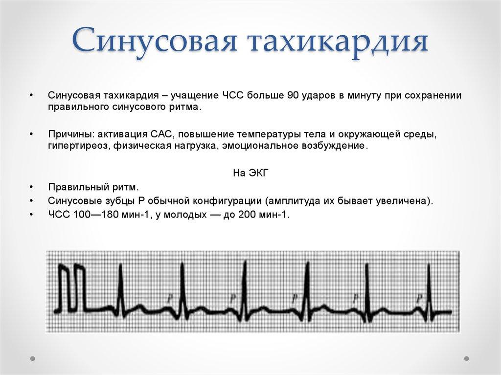 Синусовая тахикардия сердца — что это такое, симптомы и лечение