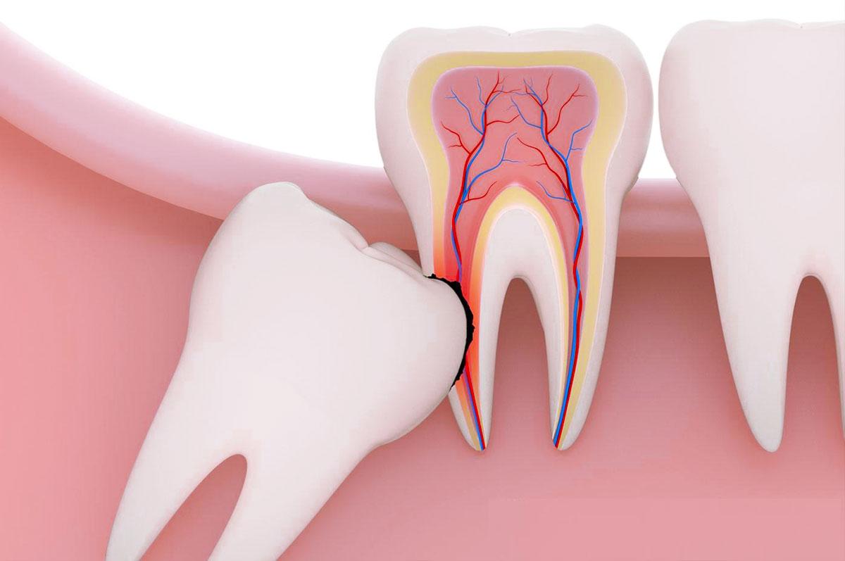 Почему появляется ретинированный зуб, что это такое и как исправить?
