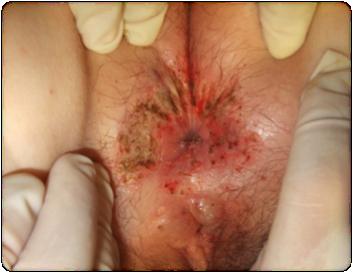 Кондиломатоз у женщин нпо: остроконечный и сифилитический, диагностика и лечение разрастаний