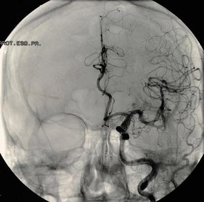 Лечение неразорвавшихся аневризм головного мозга