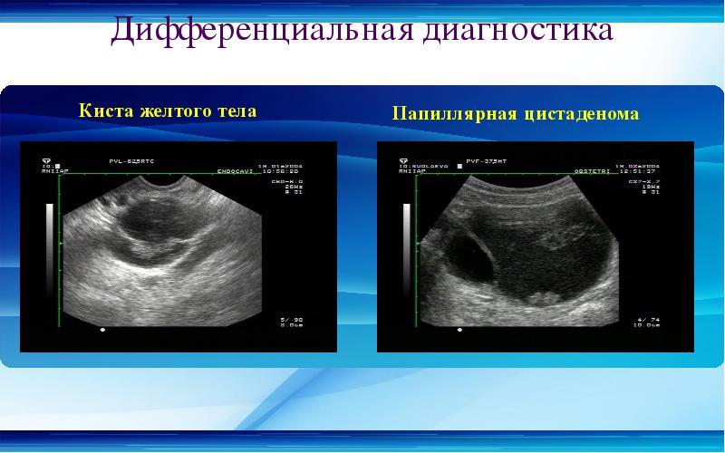 Желтое тело в левом яичнике: что это такое, размеры и патологии