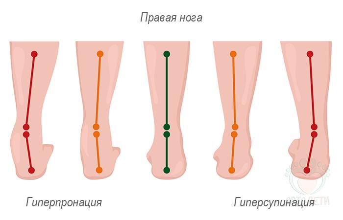 Пронация и гиперпронация стопы: почему это важно для выбора кроссовок?   training365.ru   яндекс дзен