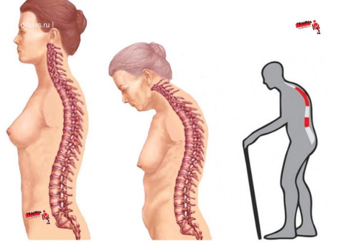 Болезнь бехтерева. стадии, формы, диагностика и лечение болезни бехтерева.