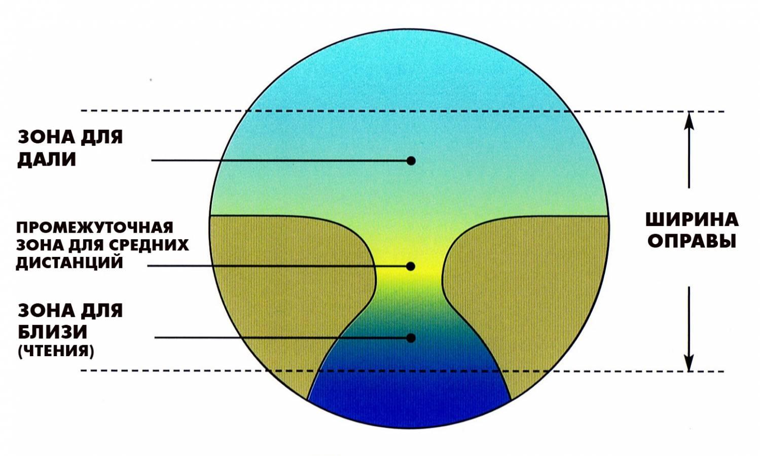 Что такое однофокальные линзы