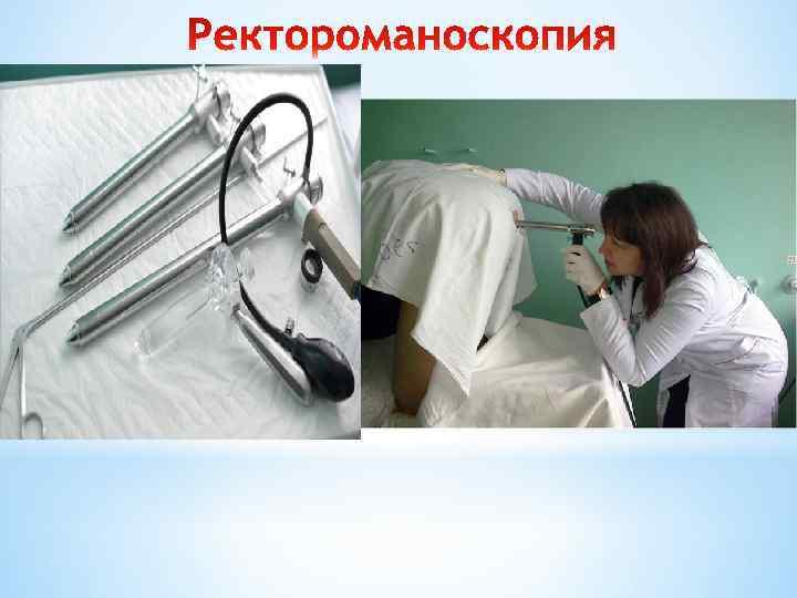 Аноскопия что это - помощь доктора