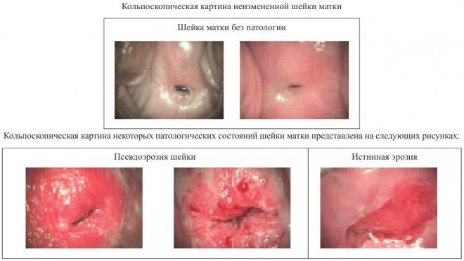 Эрозия шейки матки: симптомы, лечение, прижигание - women first