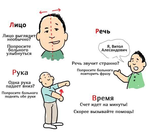 Ишемический инсульт - что это, причины, симптомы, лечение
