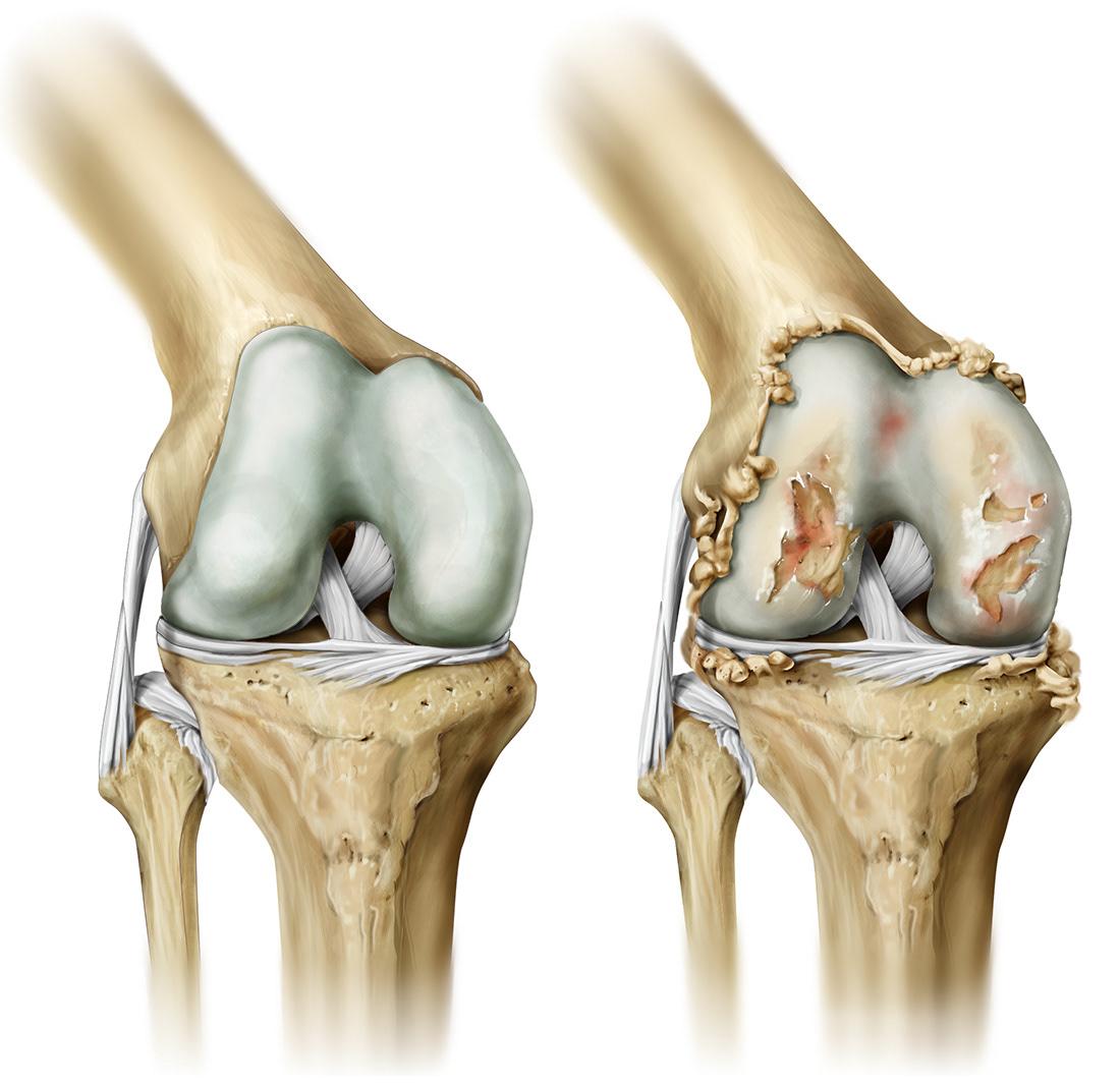 Гонартроз коленного сустава 1 степени: лечение, симптомы, причины
