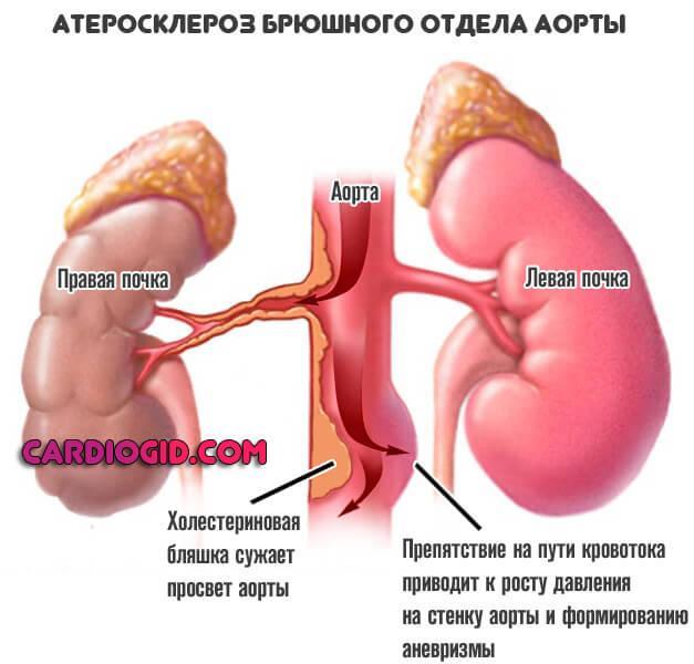 ????????атеросклероз сосудов головного мозга — симптомы и лечение ????????