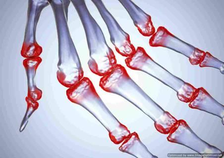 Ревматоидный артрит: что это такое, симптомы, как лечить, фото