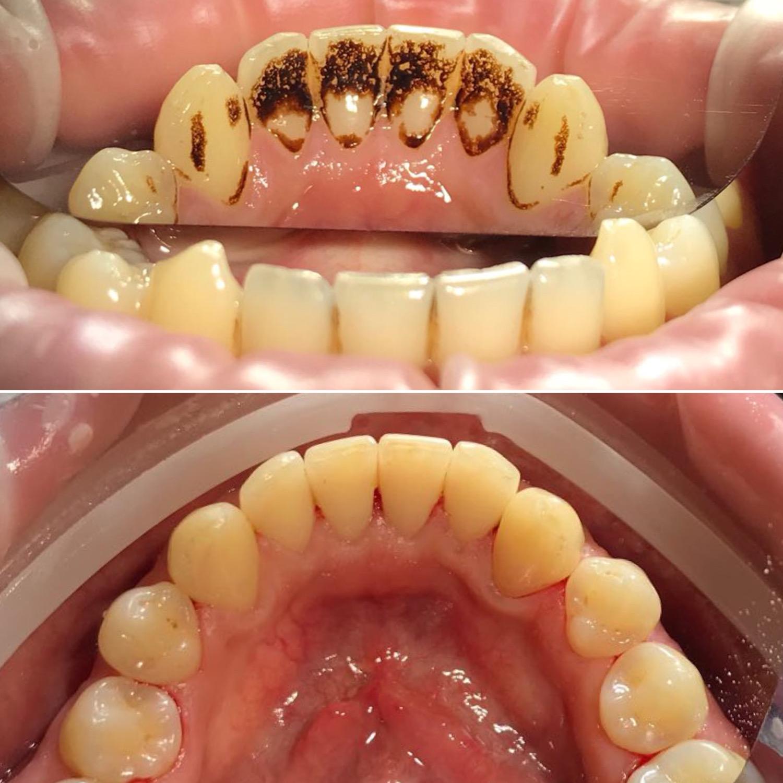 Почему появляется зубной камень и как от него избавиться