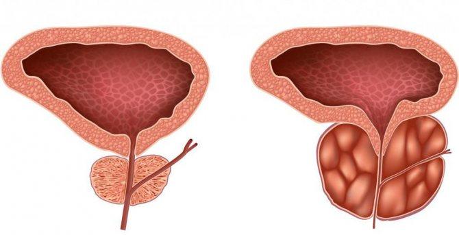 Гиперплазия простаты хзм