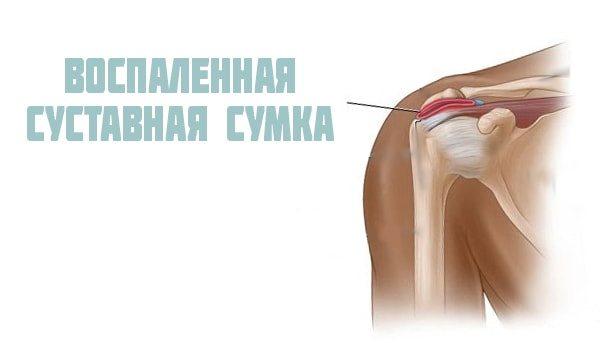 Как лечить бурсит плечевого сустава: симптомы, причины, виды