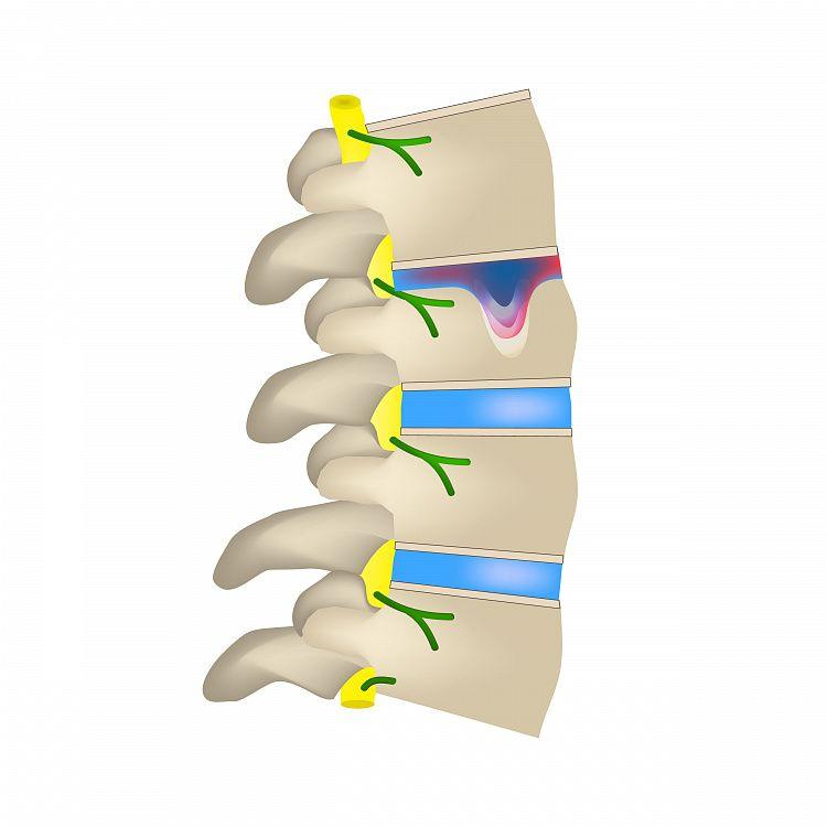 Грыжа шморля в грудном отделе позвоночника