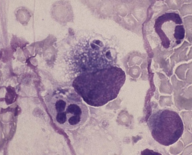 Токсоплазмоз: симптомы у человека, лечение