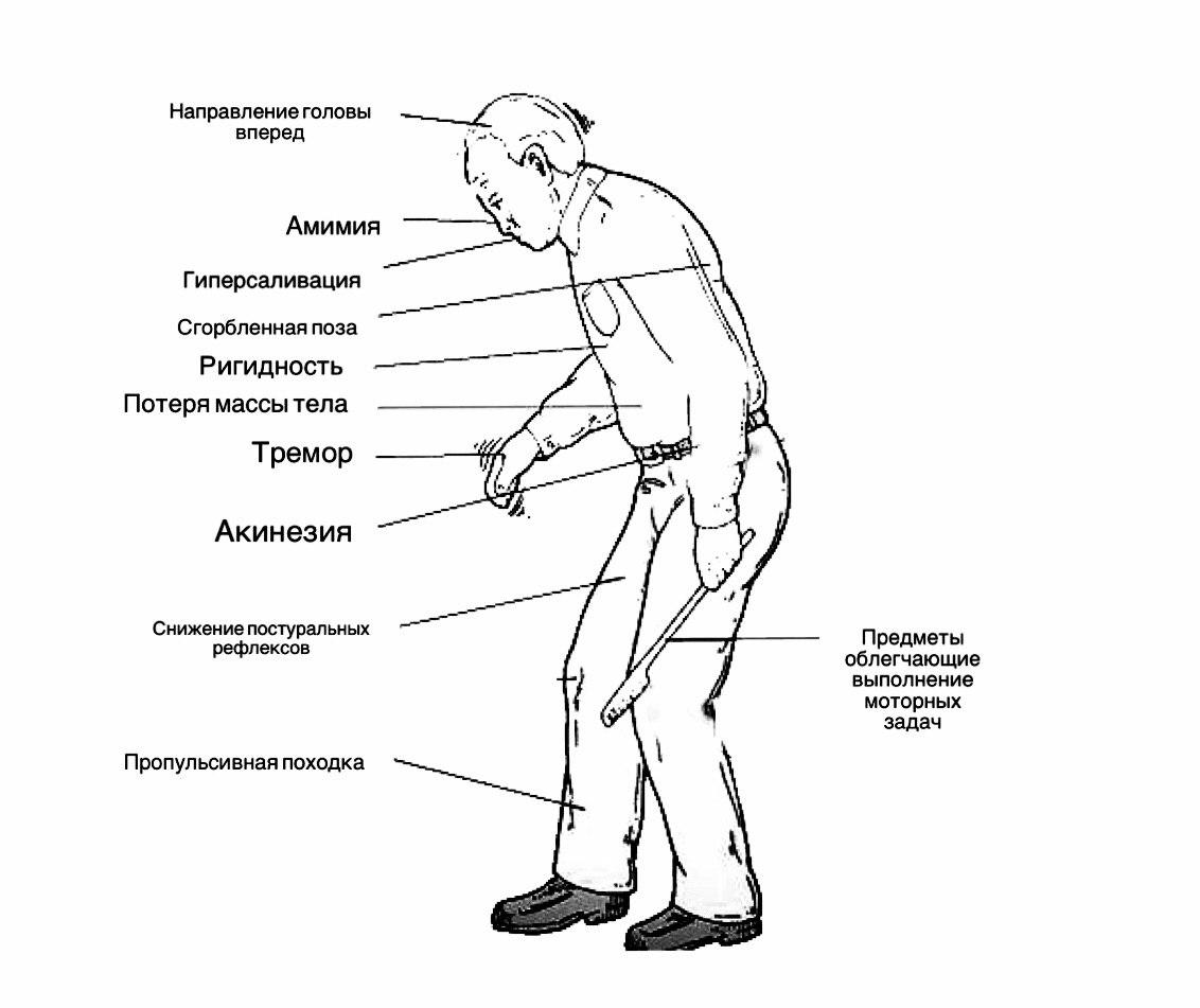 Болезнь паркинсона. причины, симптомы, диагностика и лечение заболевания