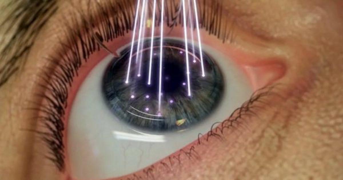 Что такое артифакия глаза и нужно ли ее лечить? как лечить артифакию глаза и что это такое