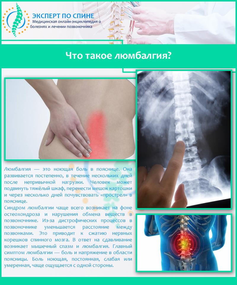 Люмбоишиалгия - симптомы, причины, лечение, диагностика