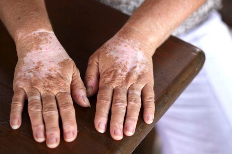 Роль меланина в организме человека