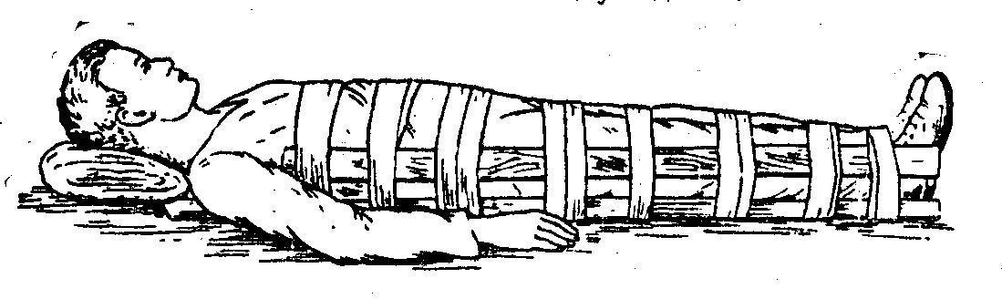 Что такое иммобилизация конечности при переломе