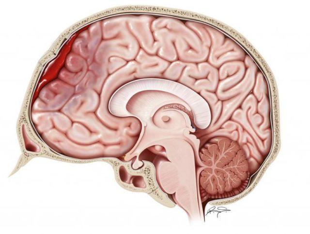 Кровоизлияние в мозг: признаки, причины и лечение, прогноз