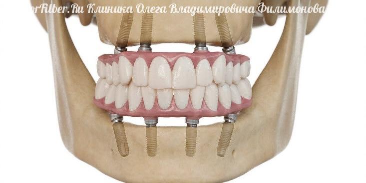 Несъемное протезирование зубов: виды протезов, показания к установке