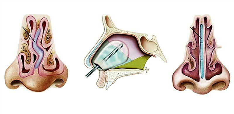 Септопластика носа — показания к операции на носовой перегородке | цэлт