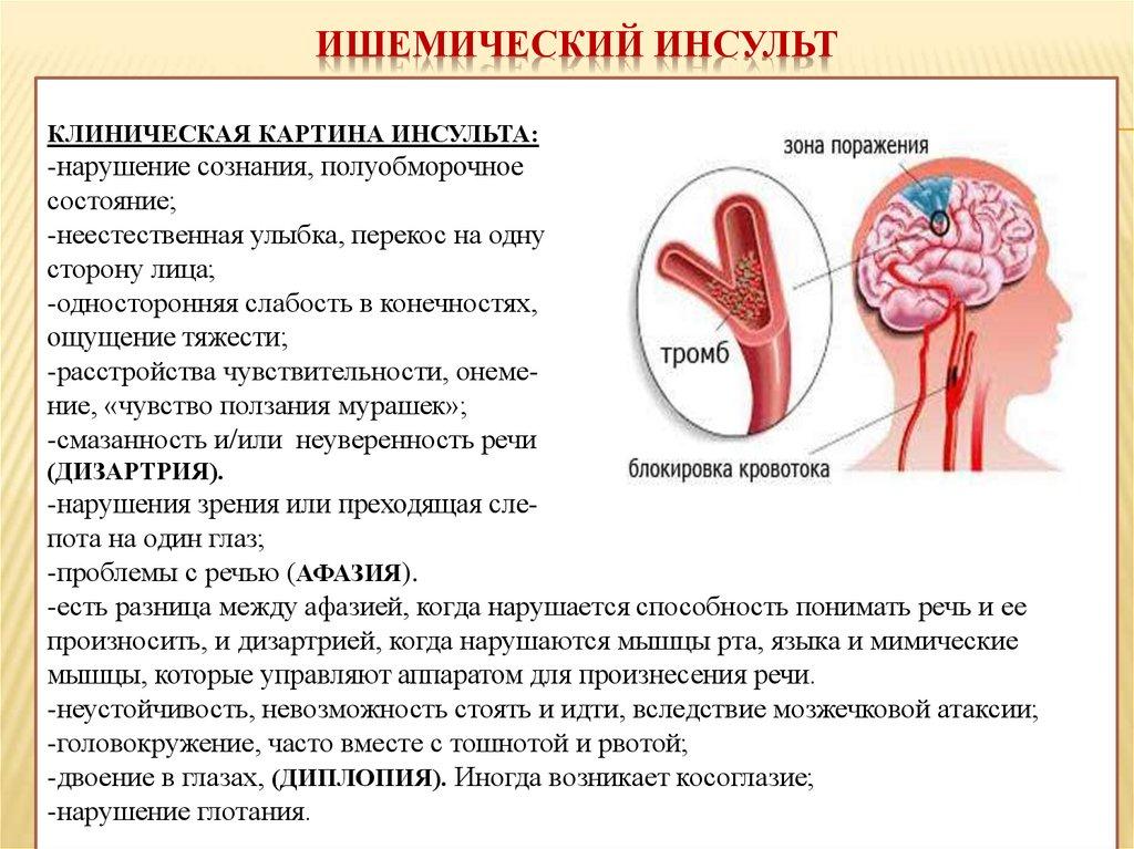 Ишемический инсульт: возможные его последствия и эффективное лечение