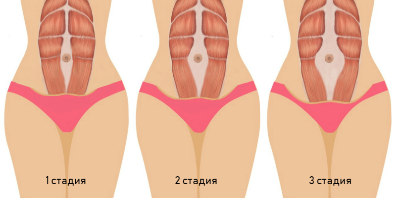 Диастаз после родов