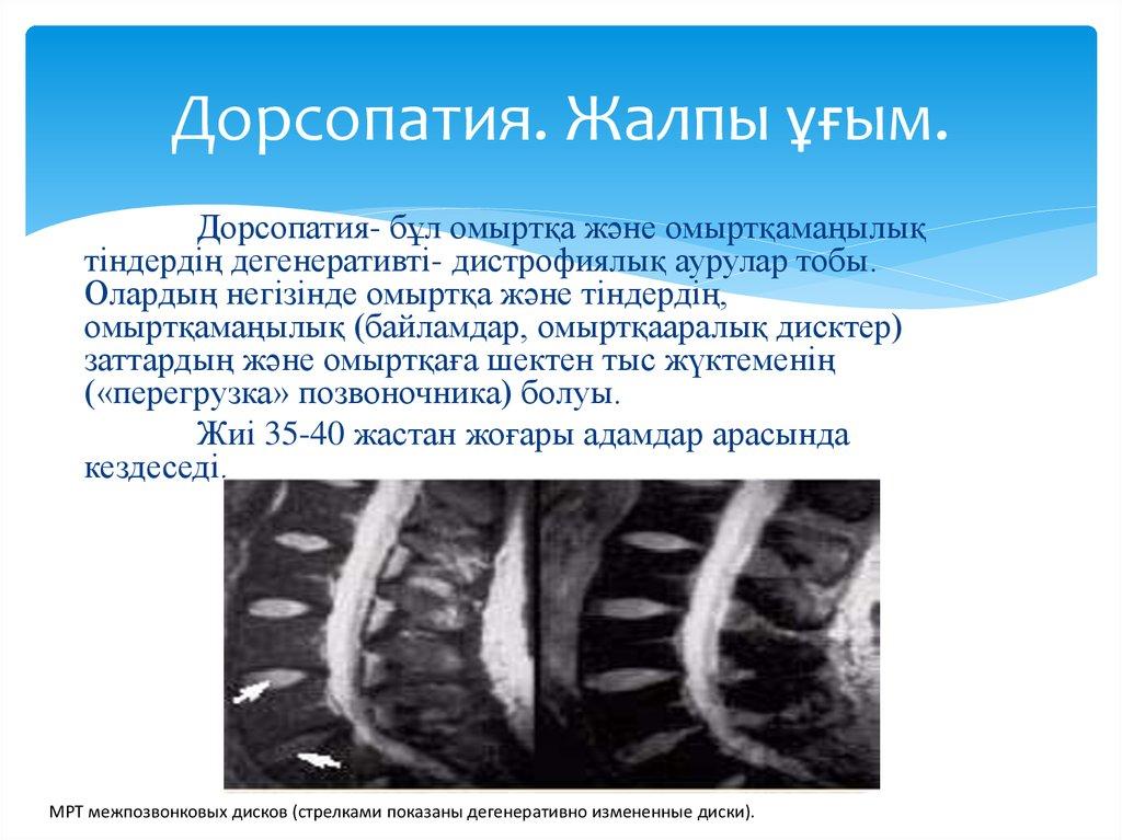 Дорсопатия шейного отдела позвоночника: лечение
