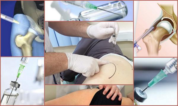 Коксартроз тазобедренного сустава: лечение, симптомы, причины, профилактика