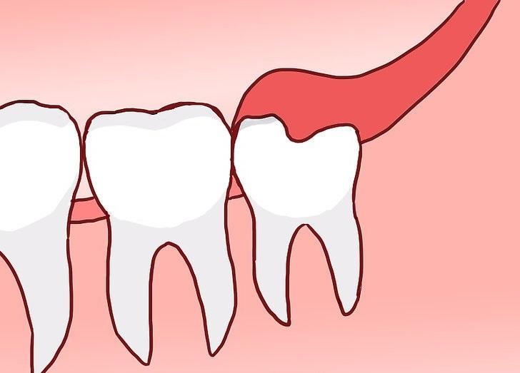Зачем нужны зубы мудрости и нужно ли их удалять?
