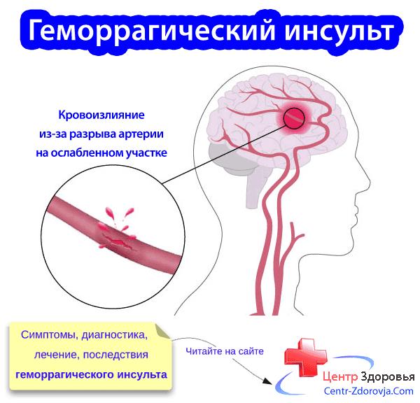Геморагический инсульт головного мозга: виды болезни, последствия и лечение