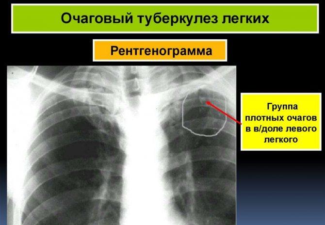 Туберкулема легких, лечение, причины, симптомы,  профилактика.