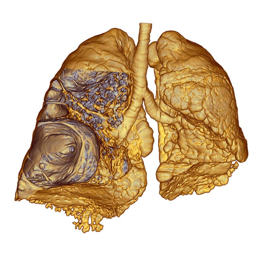 Буллезная эмфизема легких: что это такое, симптомы, причины и лечение