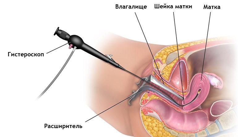 Офисная гистероскопия