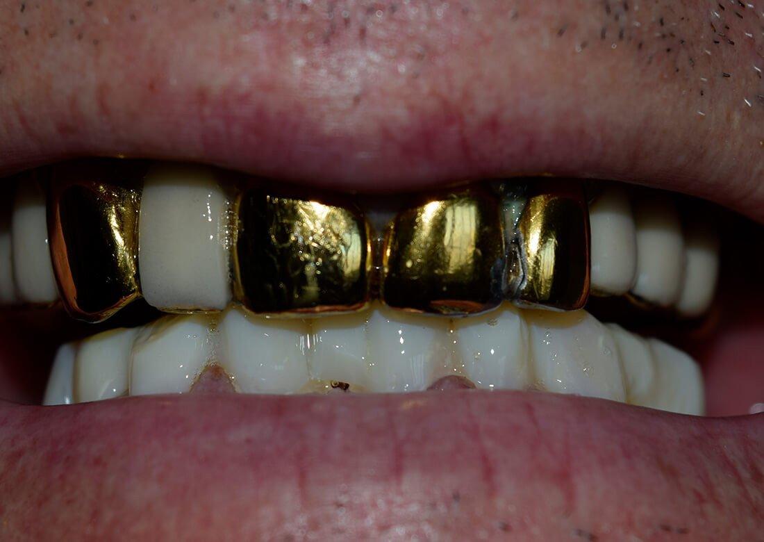 Какие зубные протезы лучше ставить — как выбрать, цены, фото