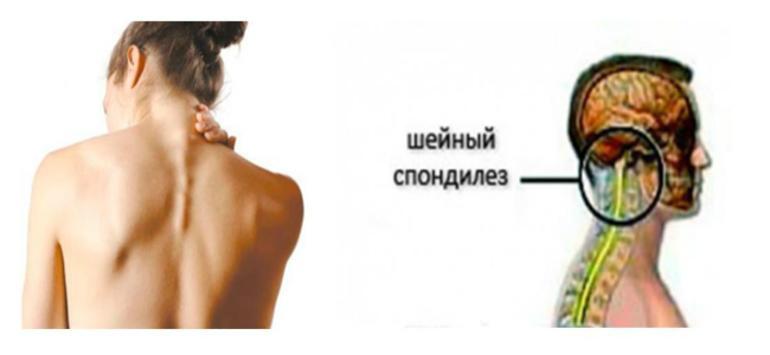 Спондилоартроз шейного отдела позвоночника: выявляем причины болевого синдрома