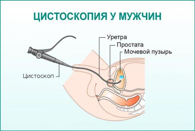 Цистоскопия: показания, проведение, осложнения