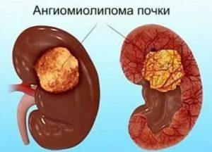 Ангиомиолипома левой почки - причины, симптомы, диагностика и лечение