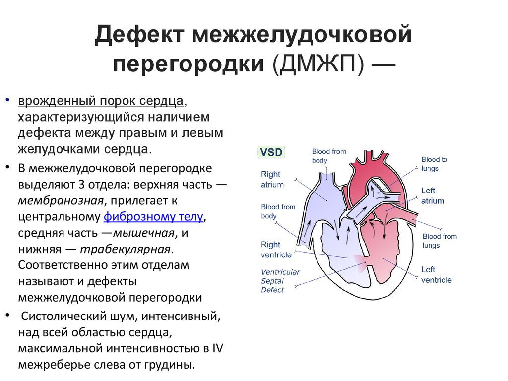 Порок сердца - что это такое? признаки, диагностика, лечение, операция