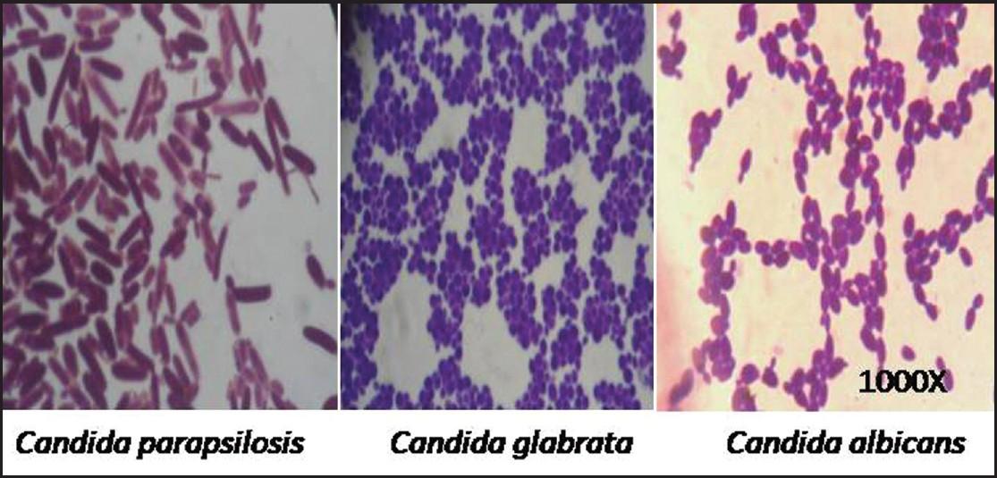 Сandida albicans (кандида альбиканс) - дрожжевой грибок: лечение у женщин и мужчин, у ребенка