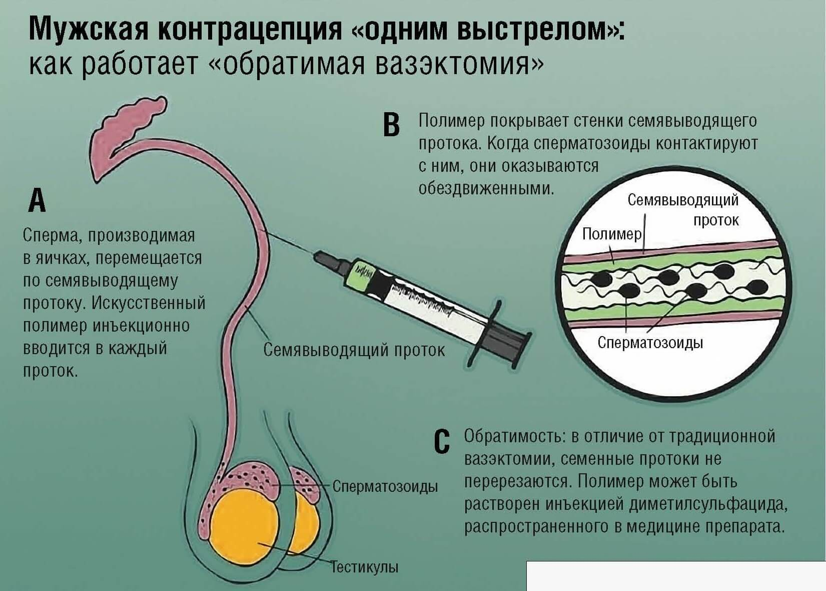 Что такое вазэктомия: причины стерилизации мужчин и последствия