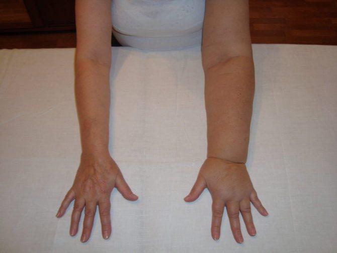 Лимфостаз | компетентно о здоровье на ilive