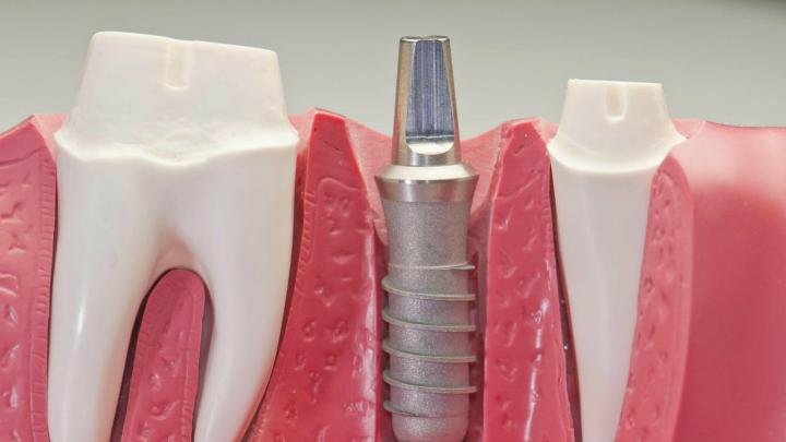 Штифты в стоматологии - показания к использованию при реставрации. основные виды конструкций, с помощью которых можно сохранить родной зуб