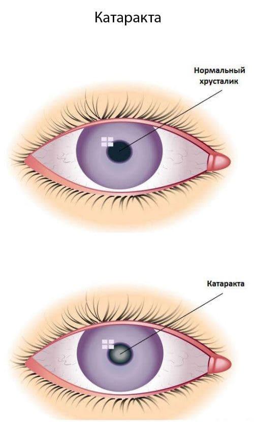 Начальная катаракта: что это такое, причины, симптомы, что можно сделать самостоятельно, как лечить патологию